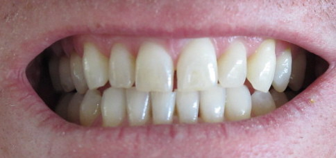 Should I Have my Cavities Filled Before Professional Teeth Whitening?