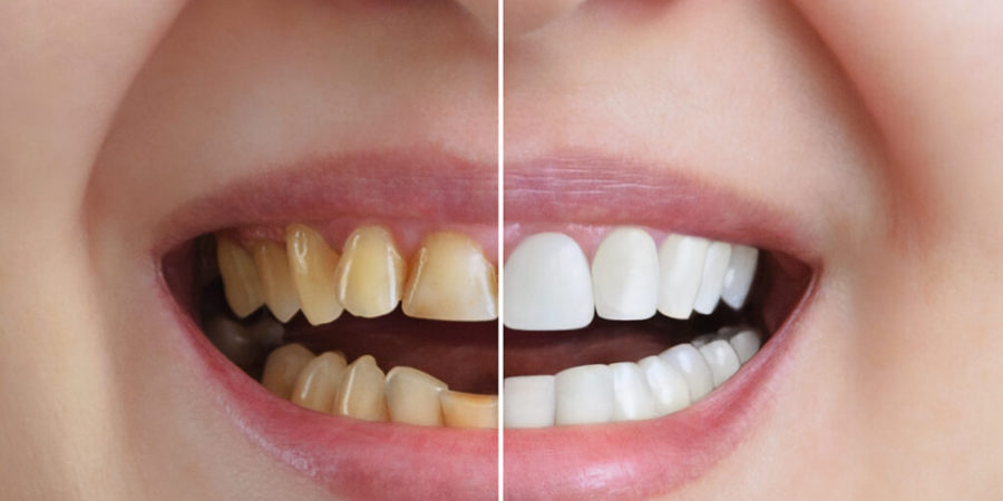 Smile Make over: Improving Color and Texture of Teeth