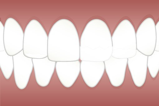 How to Get Rid of Yellow Teeth Overnight